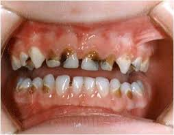 rotten kids teeth